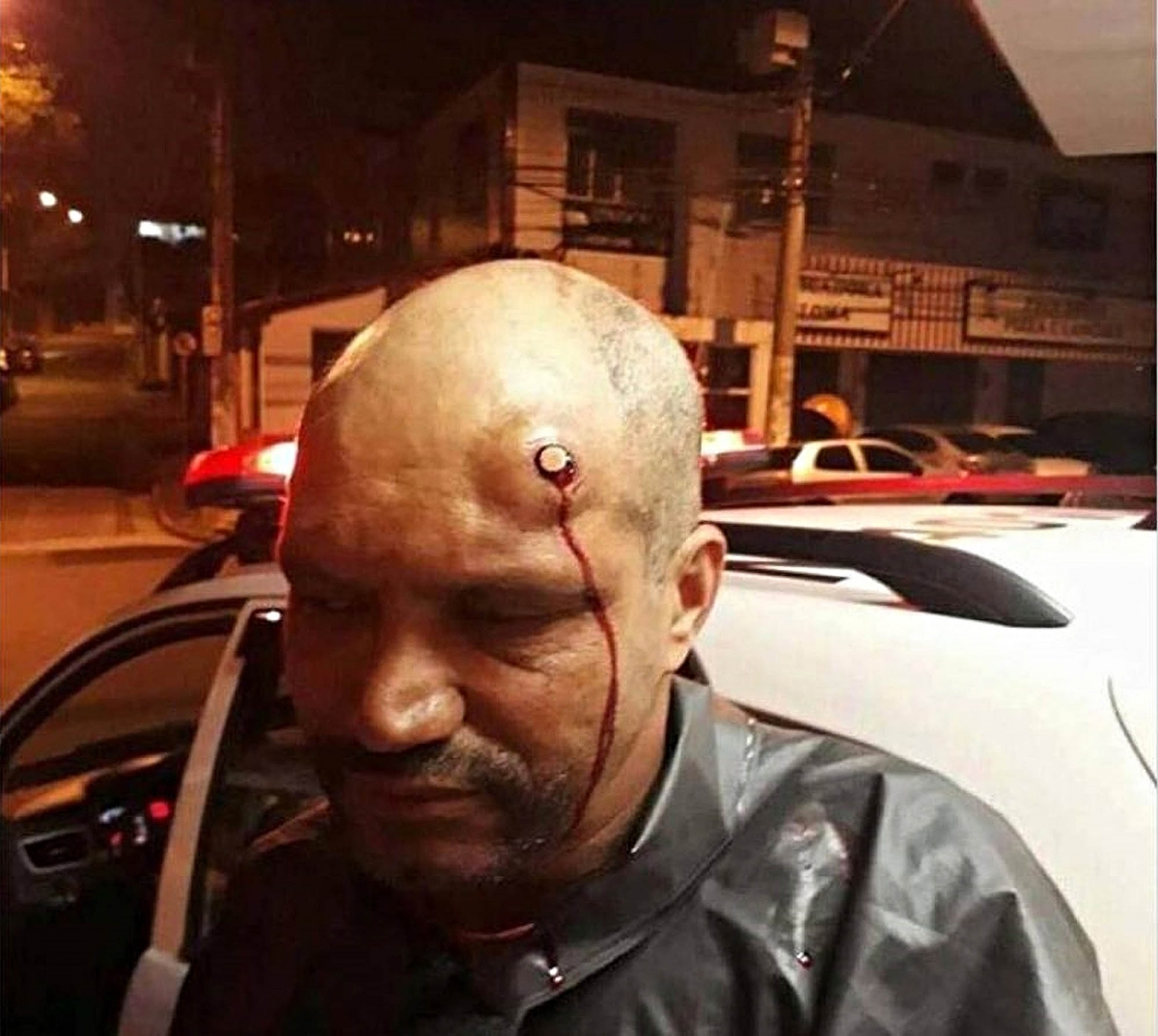 Man survives an Head Shot!